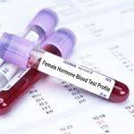 hormone test